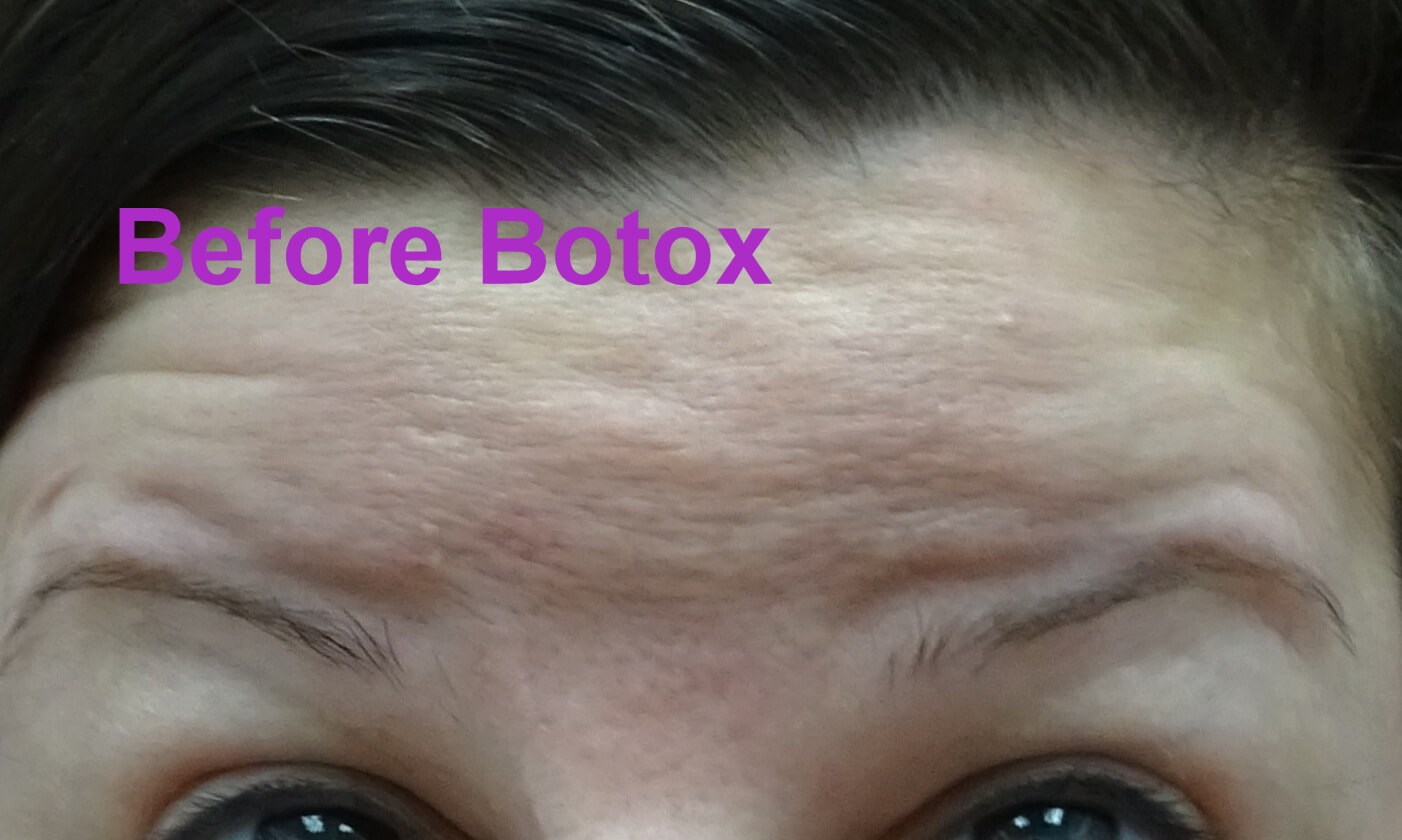 Botox Day #4/14--looking up  Raising Eyebrows Before Botox