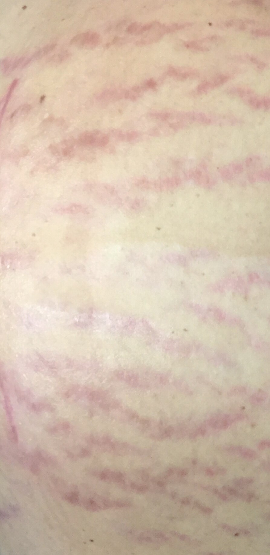 MicroNeedling of Stretch Marks Stretch Marks Before MicroPen