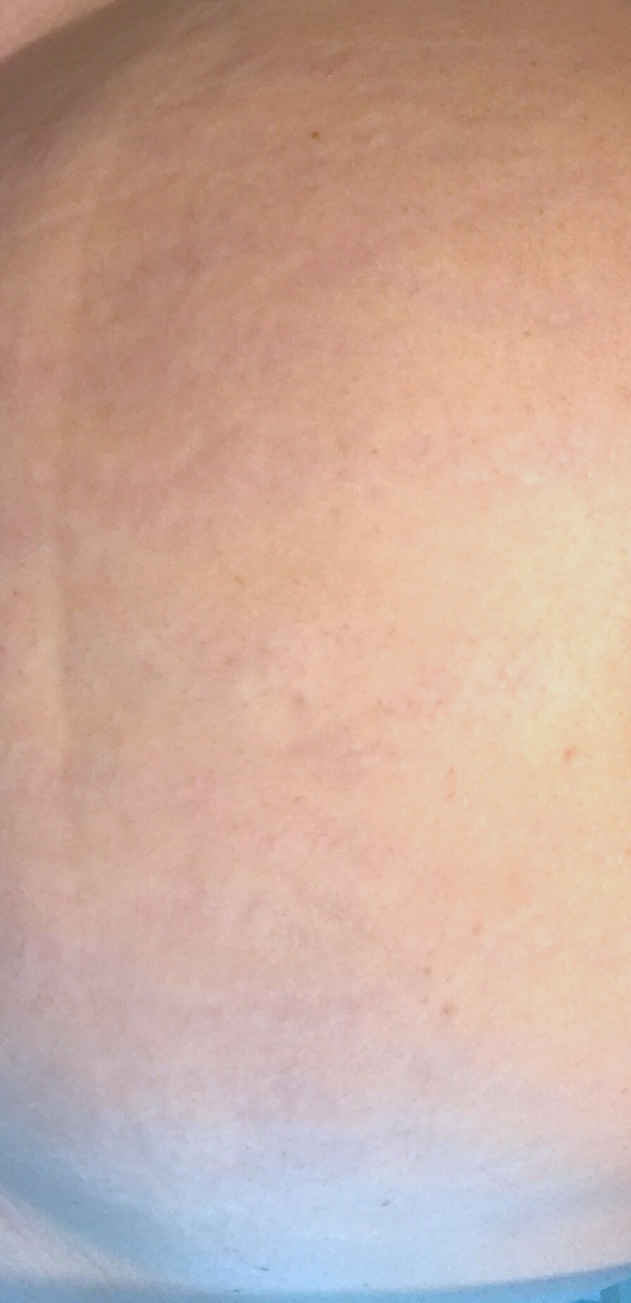MicroNeedling of Stretch Marks Stretch Marks After MicroPen