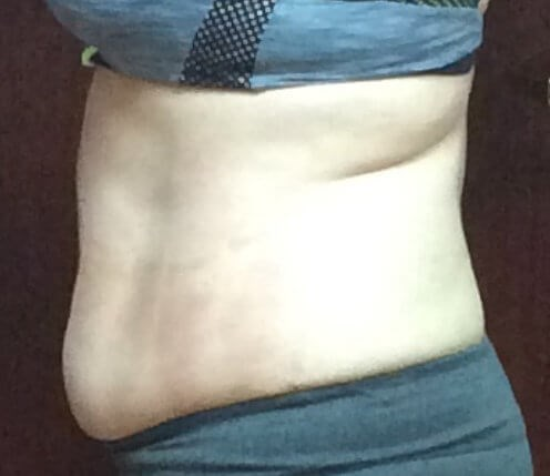 Fat Loss with Strawberry Laser Before Strawberry Laser Lipo