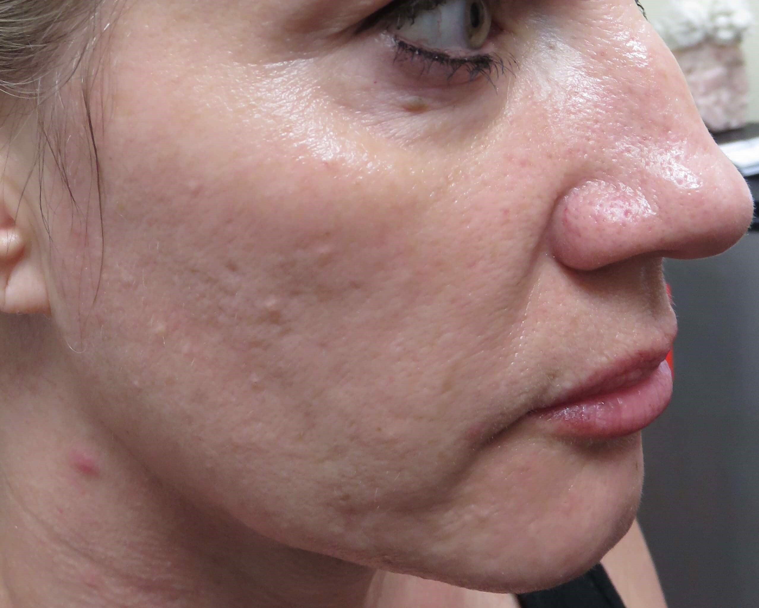 Results of MicroNeedling with  Before MicroNeedling w/PRP