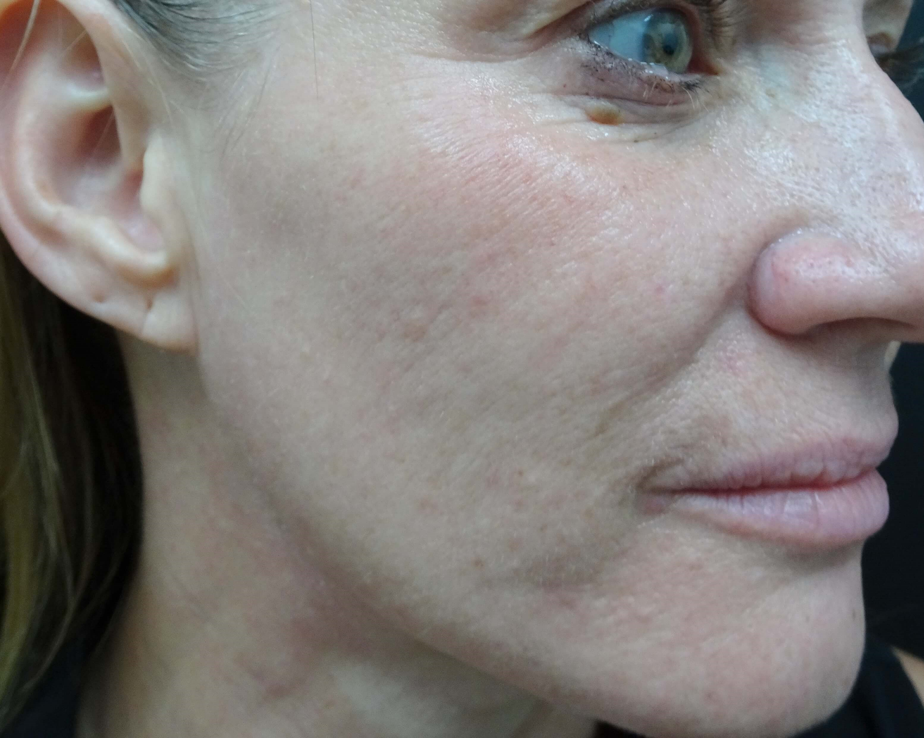 Results of MicroNeedling with  After MicroNeedling w/PRP