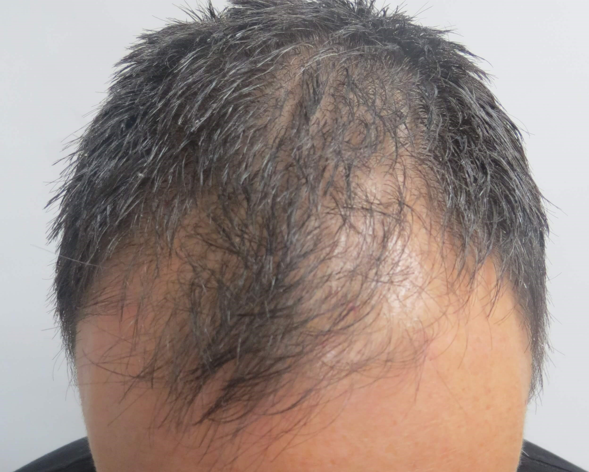 PRP simulates hair growth - LV Hair Before PRP treatment