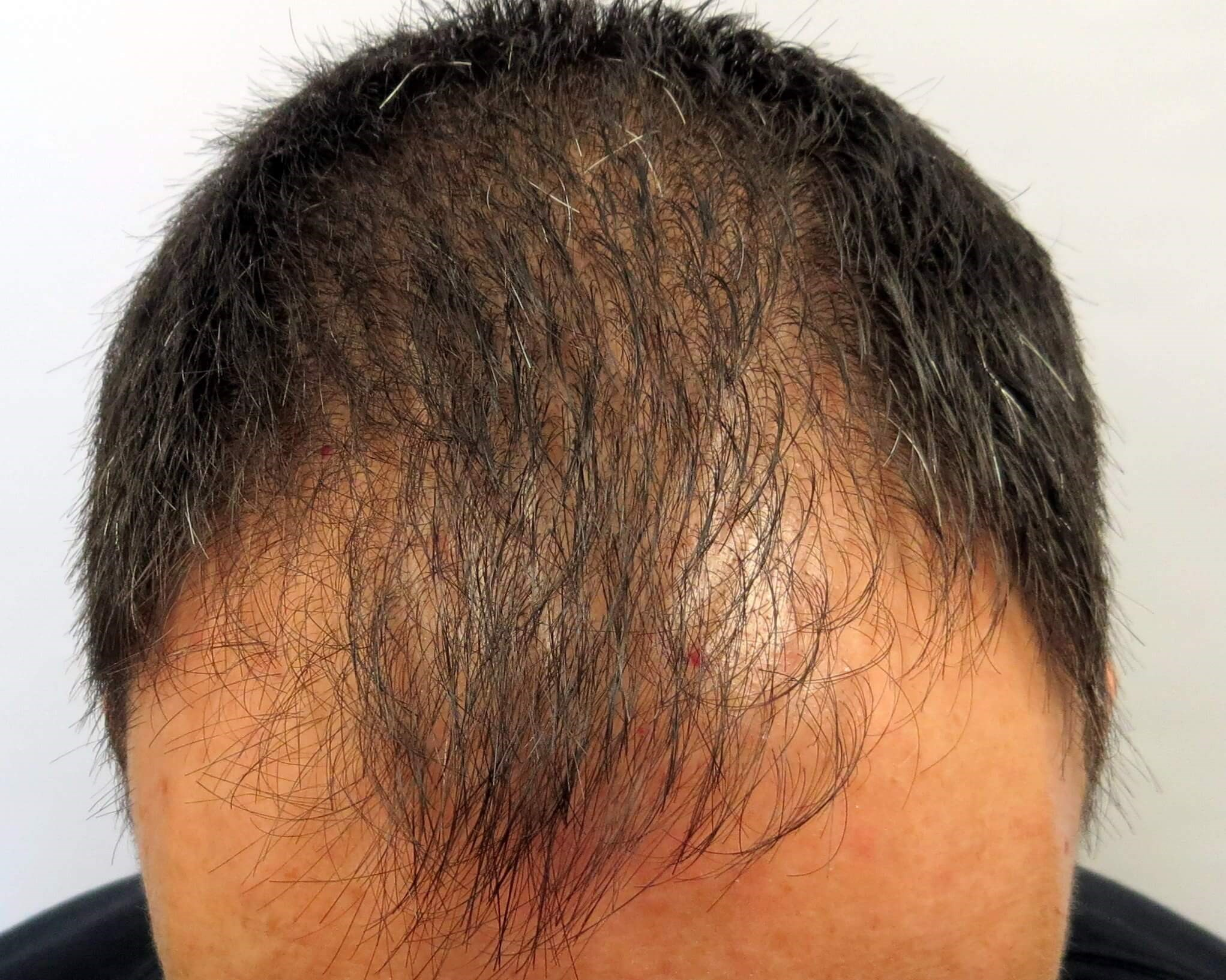 PRP simulates hair growth - LV Hair 10 months After PRP