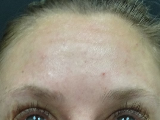 Botox for Forehead wrinkles 2 weeks After Botox