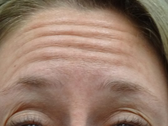 Botox for Forehead wrinkles Before Botox