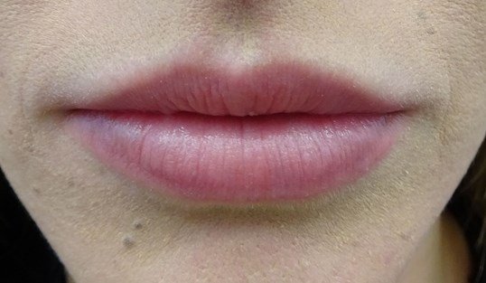 Lip Augmentation with Juvederm Lips After Juvederm Ultra