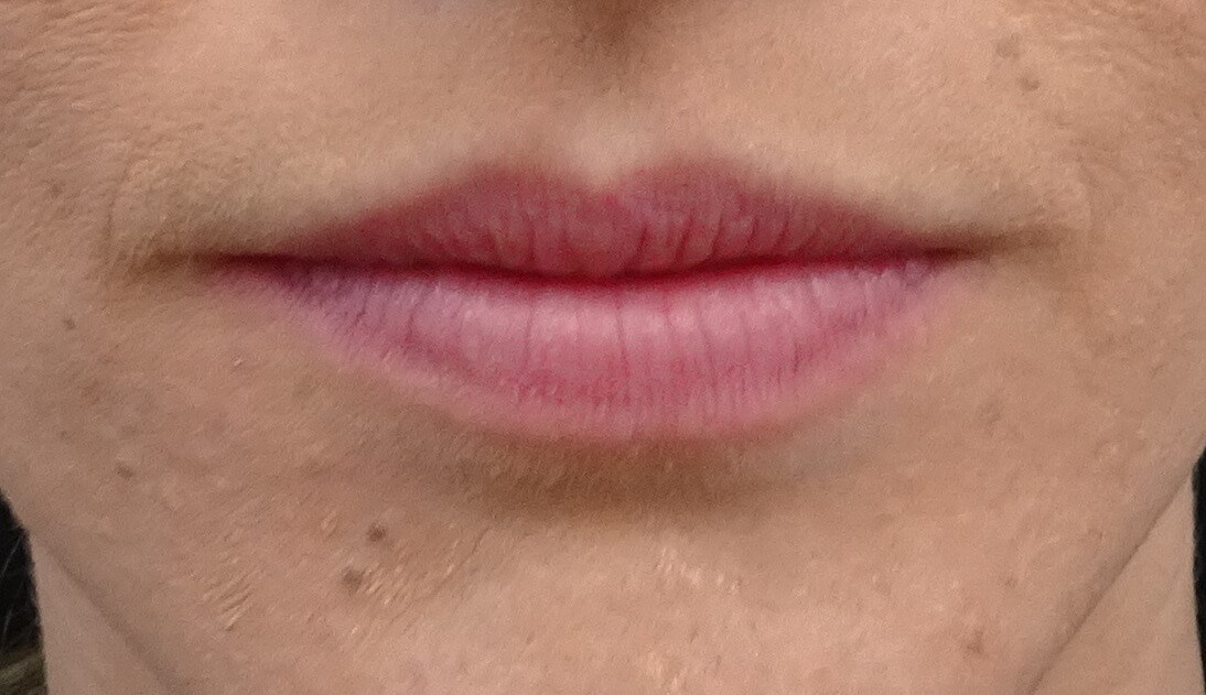 Lip Augmentation with Juvederm Lips Before Juvederm Ultra