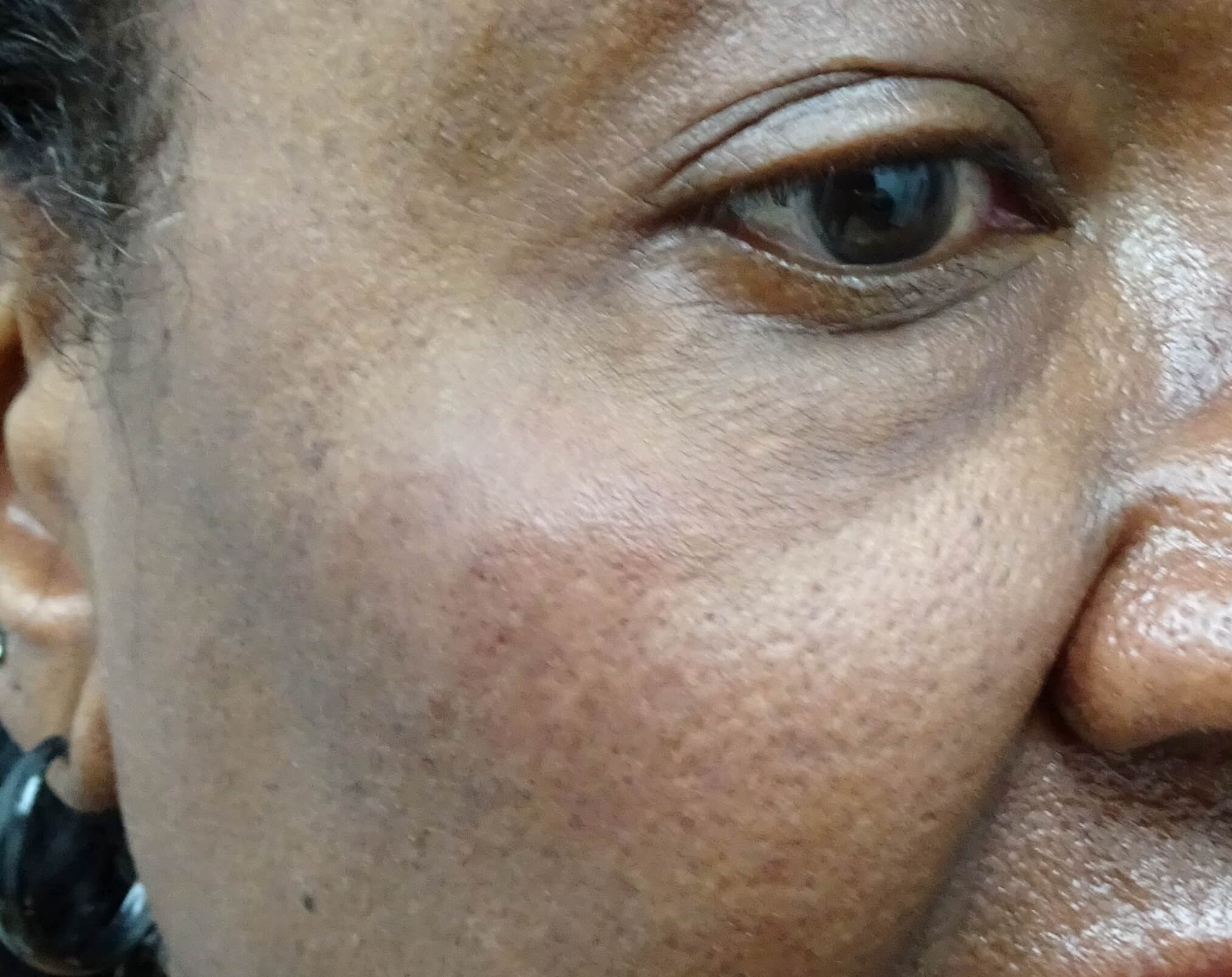 Restylane Lyft lifts cheeks Cheek After Restylane