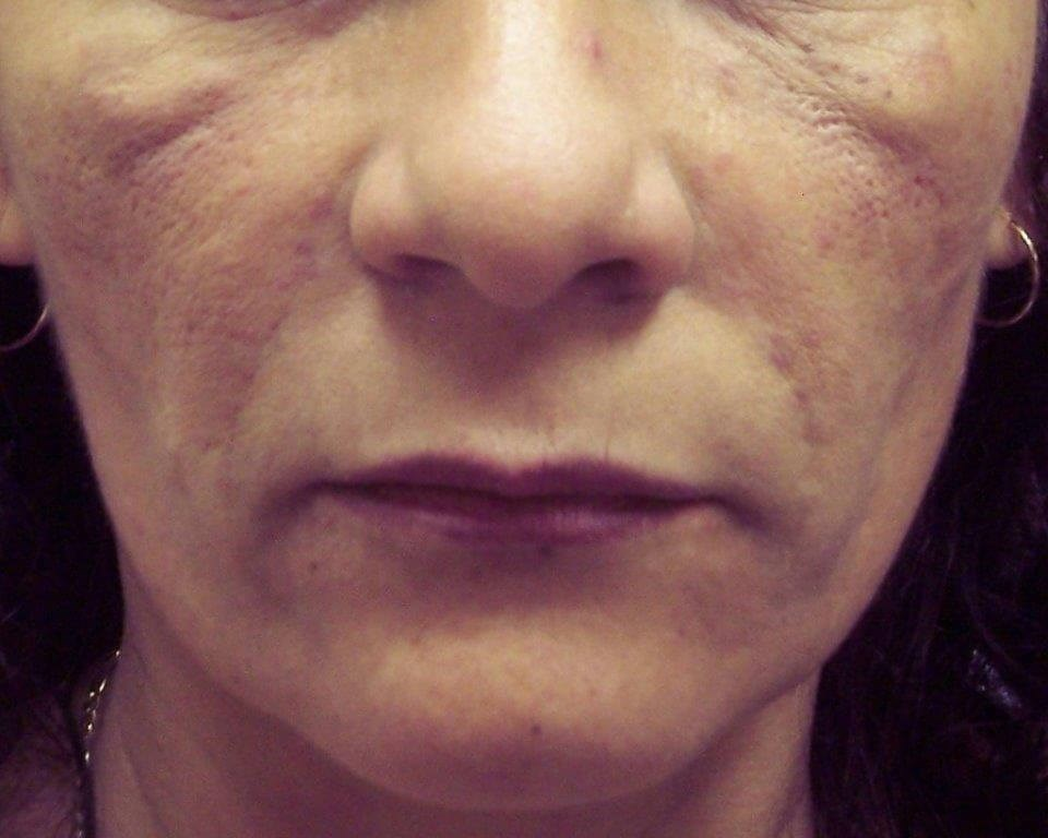 Lower Face Makeover in Vegas After Dr. Lee