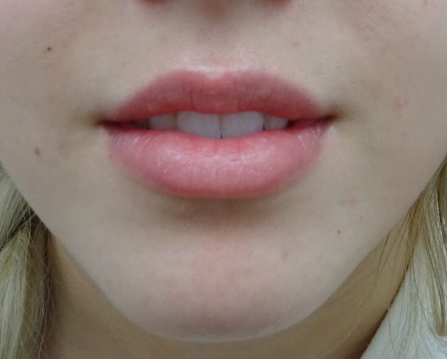 Lips with Restylane Refyne Before Restylane