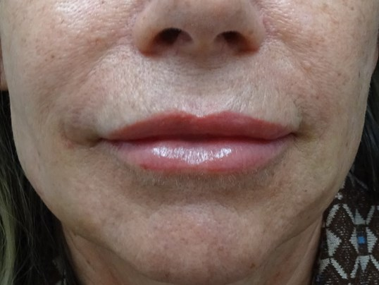 Lower Face Makeover w/ Dr. Lee After Juvedem