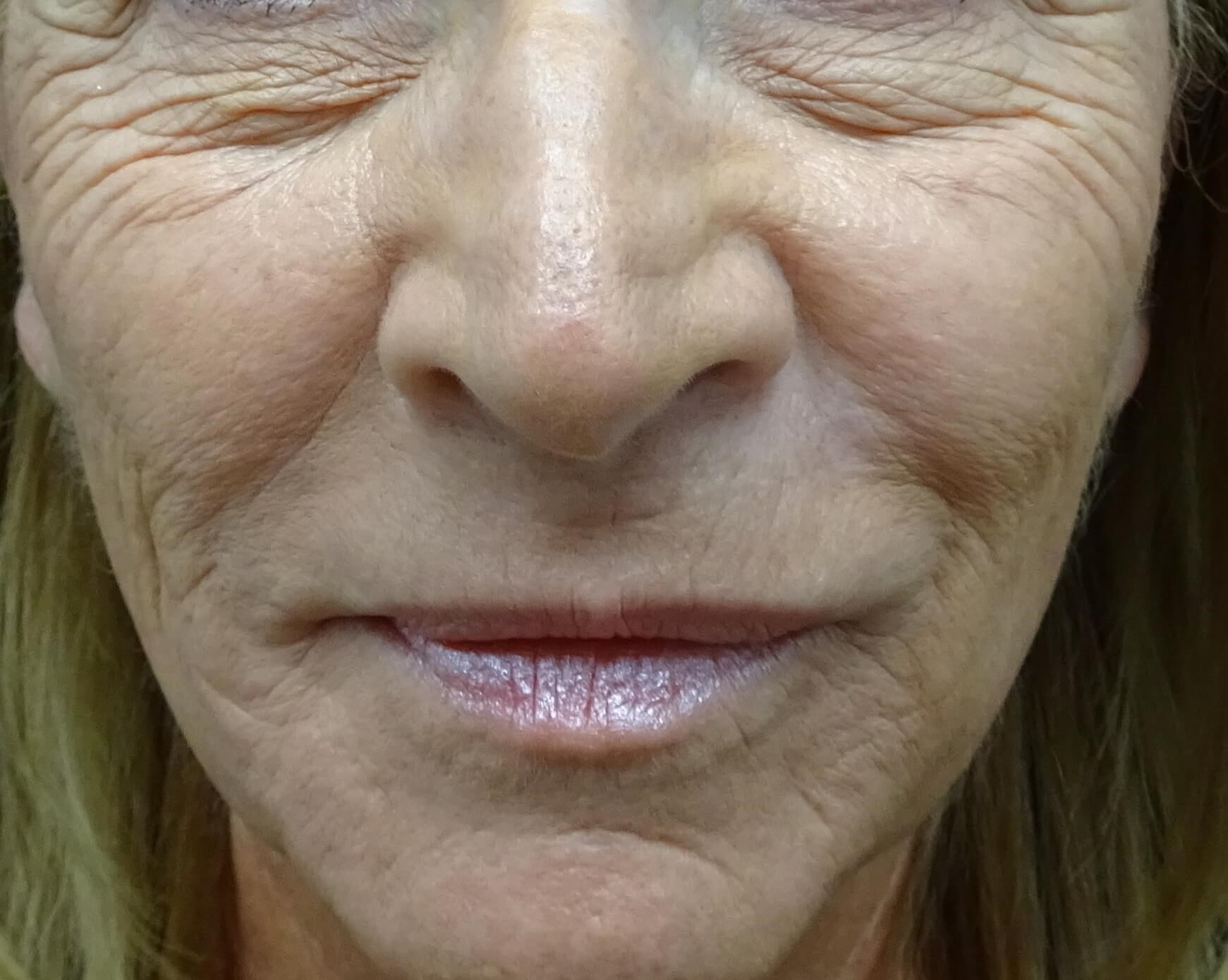 Before and after Juvederm Before Juvederm, mid-face