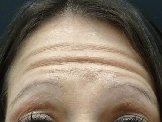 Botox in Henderson / Las Vegas Before Botox