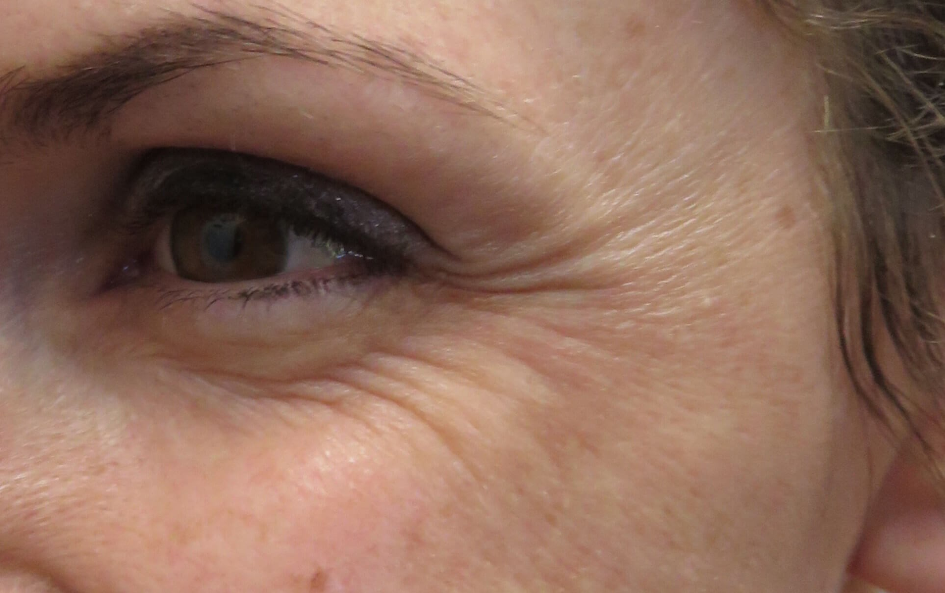 Botox in Henderson / Las Vegas Crow's Feet Before Botox