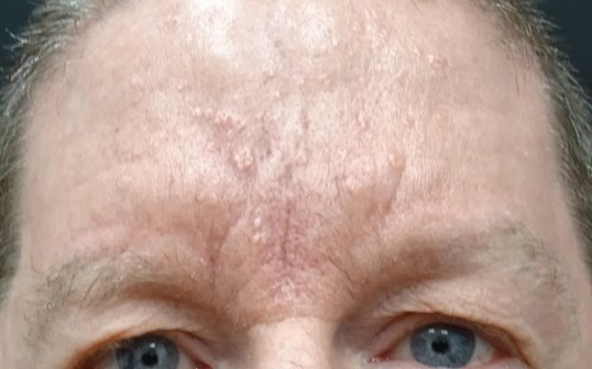 Forehead Scar Before & After Scar After Juvederm & Dr. Lee