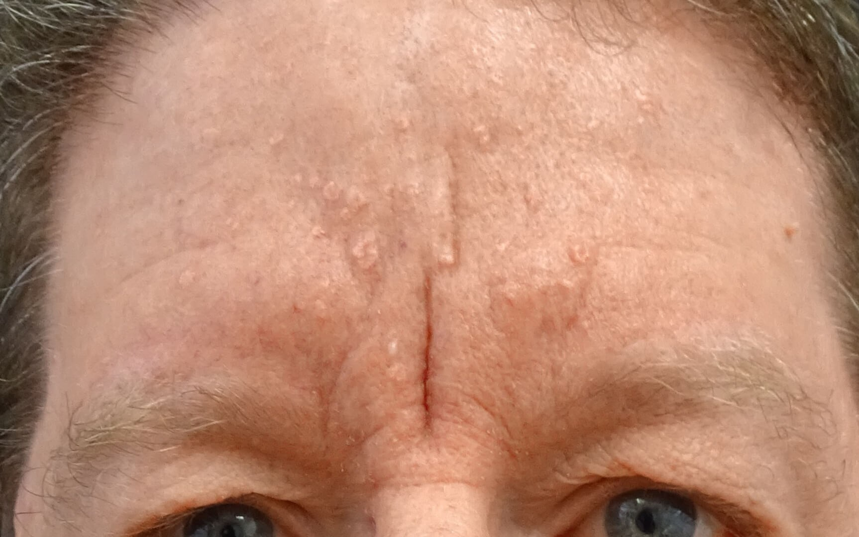 Forehead Scar Before & After Deep Scar Before Juvederm