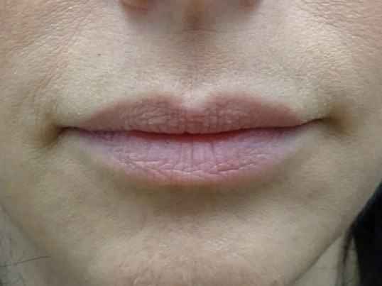 Enhance Lips with Restytlane Lips Before Restylane Refyne