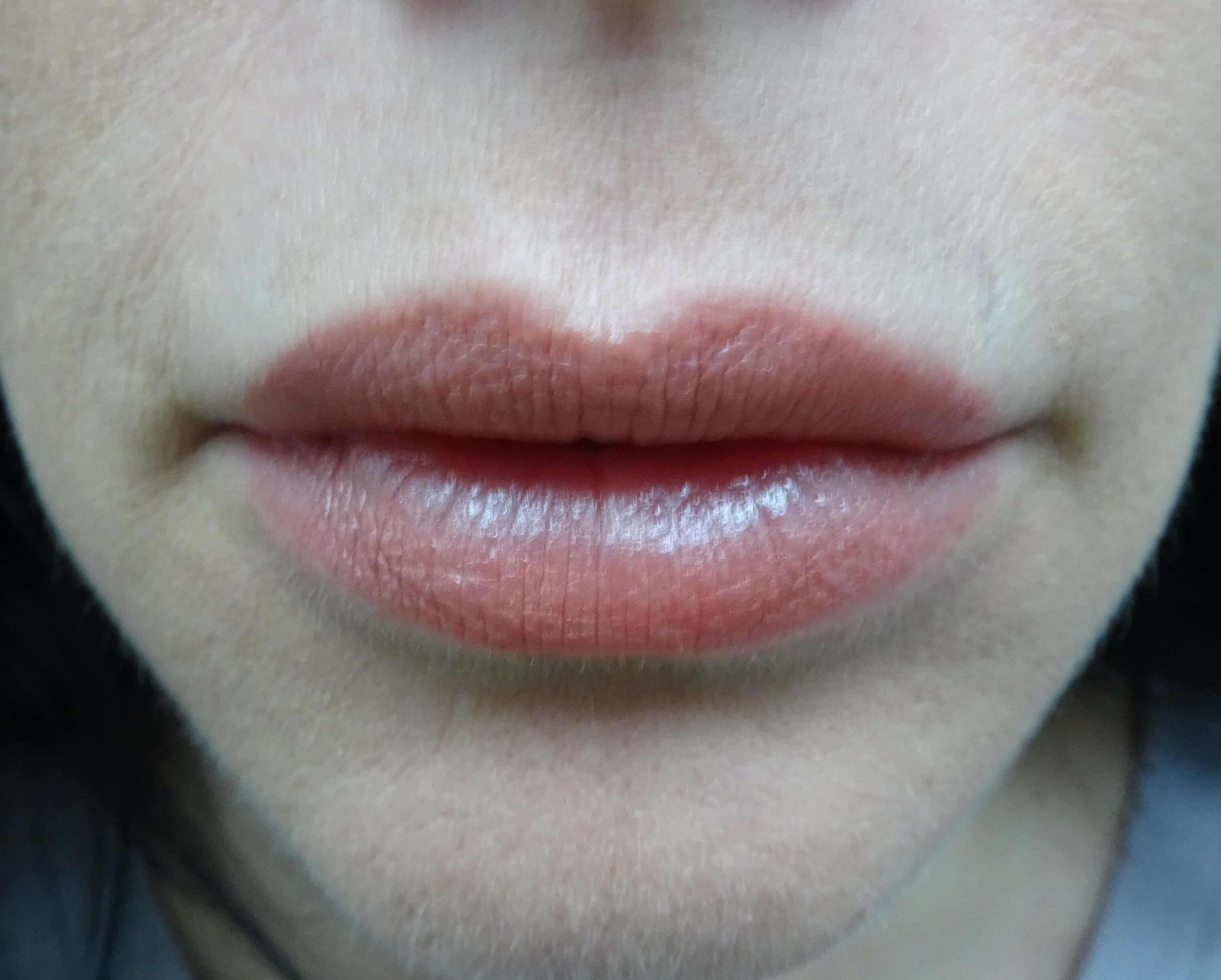 Enhance Lips with Restytlane Lips After Restylane Refyne