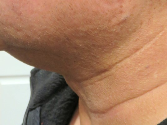 Loose Skin Tightened with TTT After RF+MicroNeedling+PRP