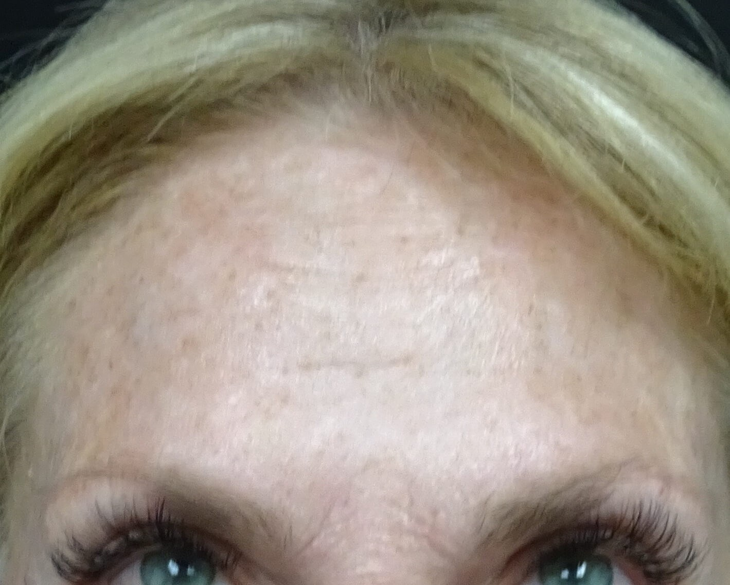 Botox in Henderson / Las Vegas 2 Weeks After Botox Injection