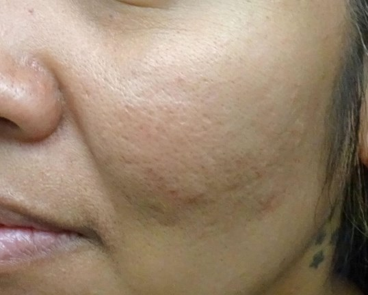 MicroNeedling with PRP in LV After Juvederm + TTT
