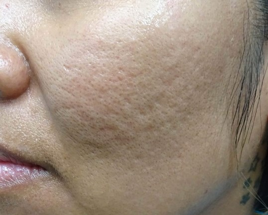 MicroNeedling with PRP in LV Acne Scars Pre Juvederm +TTT