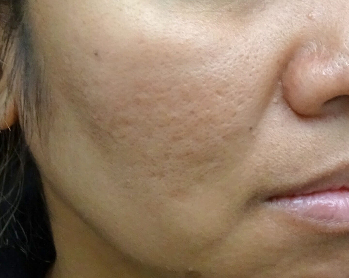 Juvederm + MicroPen + PRP After