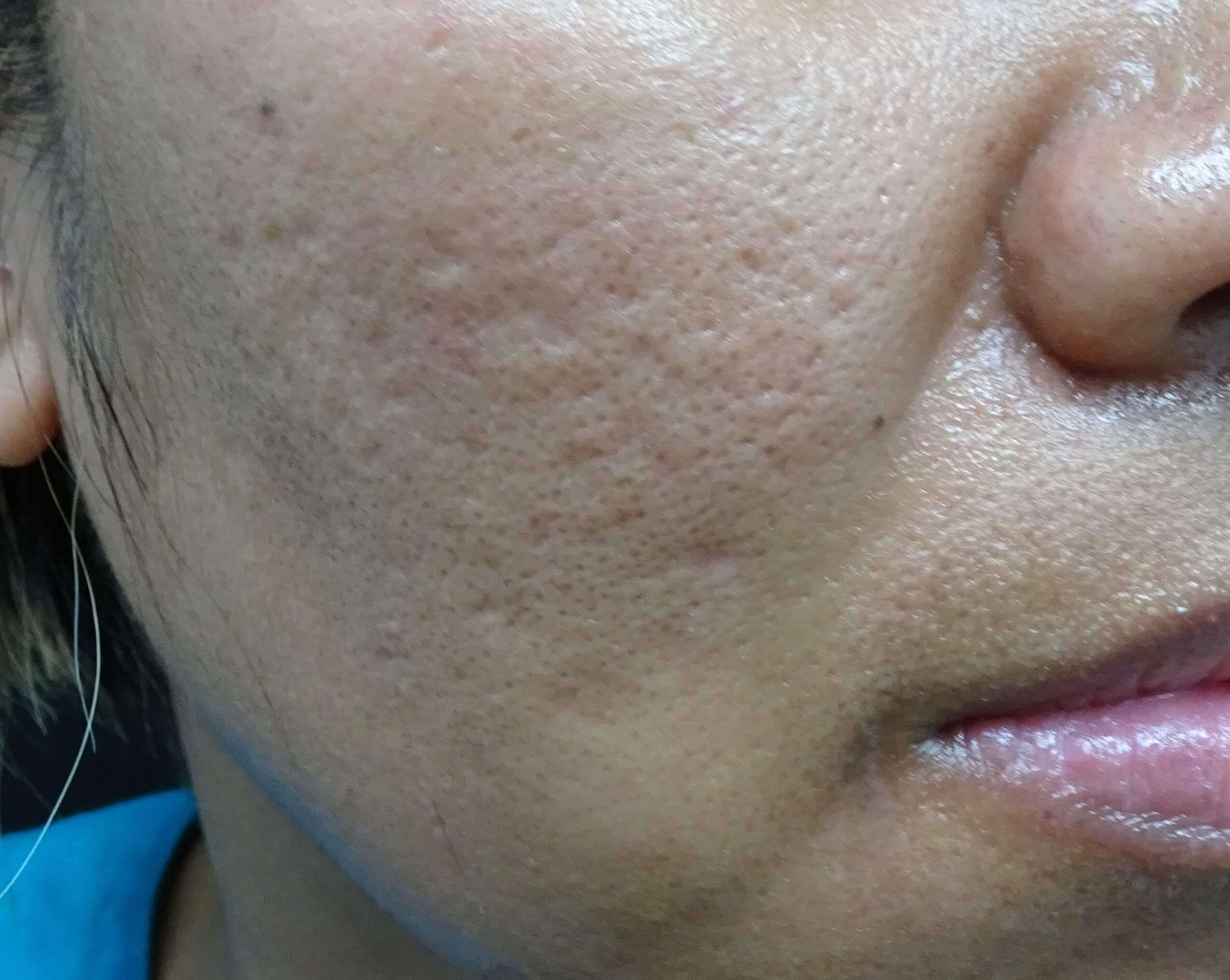 Juvederm + MicroPen + PRP Before
