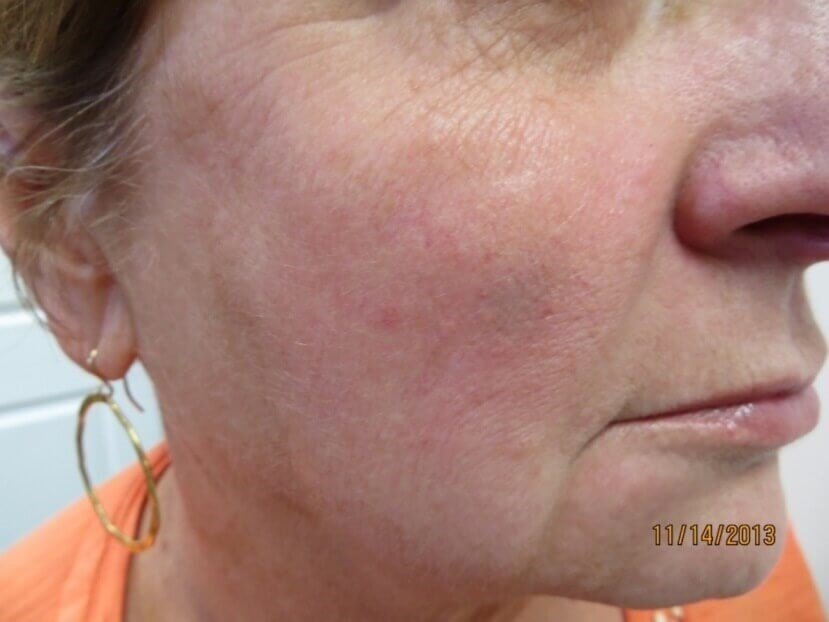 Voluma Results in Las Vegas After Juvederm Voluma