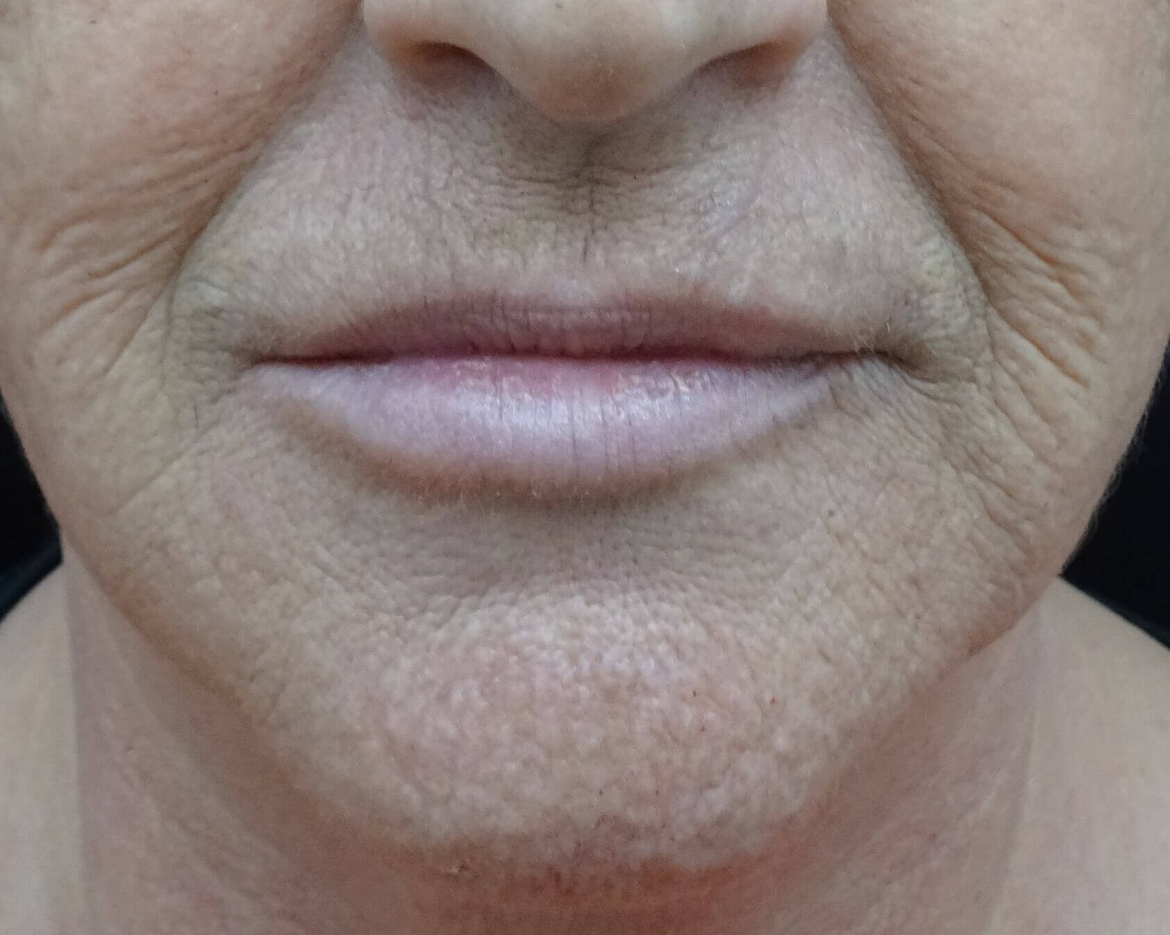 Fuller Lips with Juvederm After Juvederm