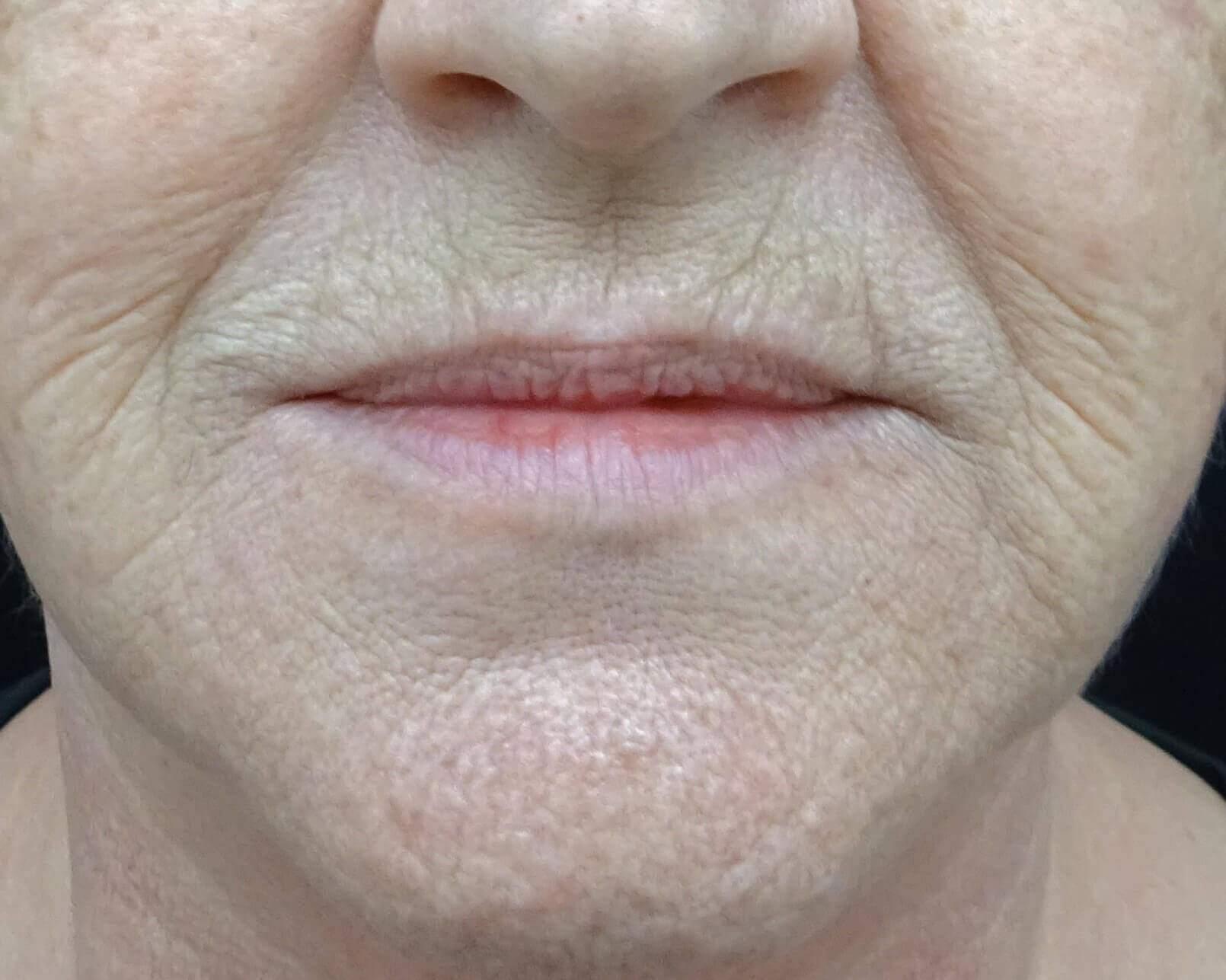 Fuller Lips with Juvederm Lips Before Juvederm UltraPlus