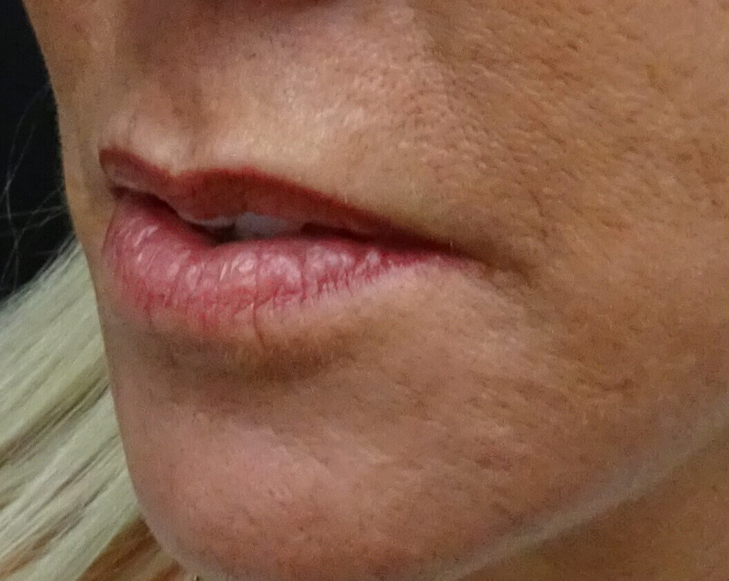 Side View Before & After Before Juvederm & Dr. Lee