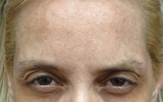 Botox at look younger md in he All Gone After Botox