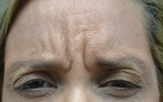 Botox at look younger md in he Frown Lines Before Botox