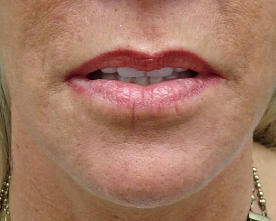 Juvederm enhances thin lips Thin Lips Before Juvederm