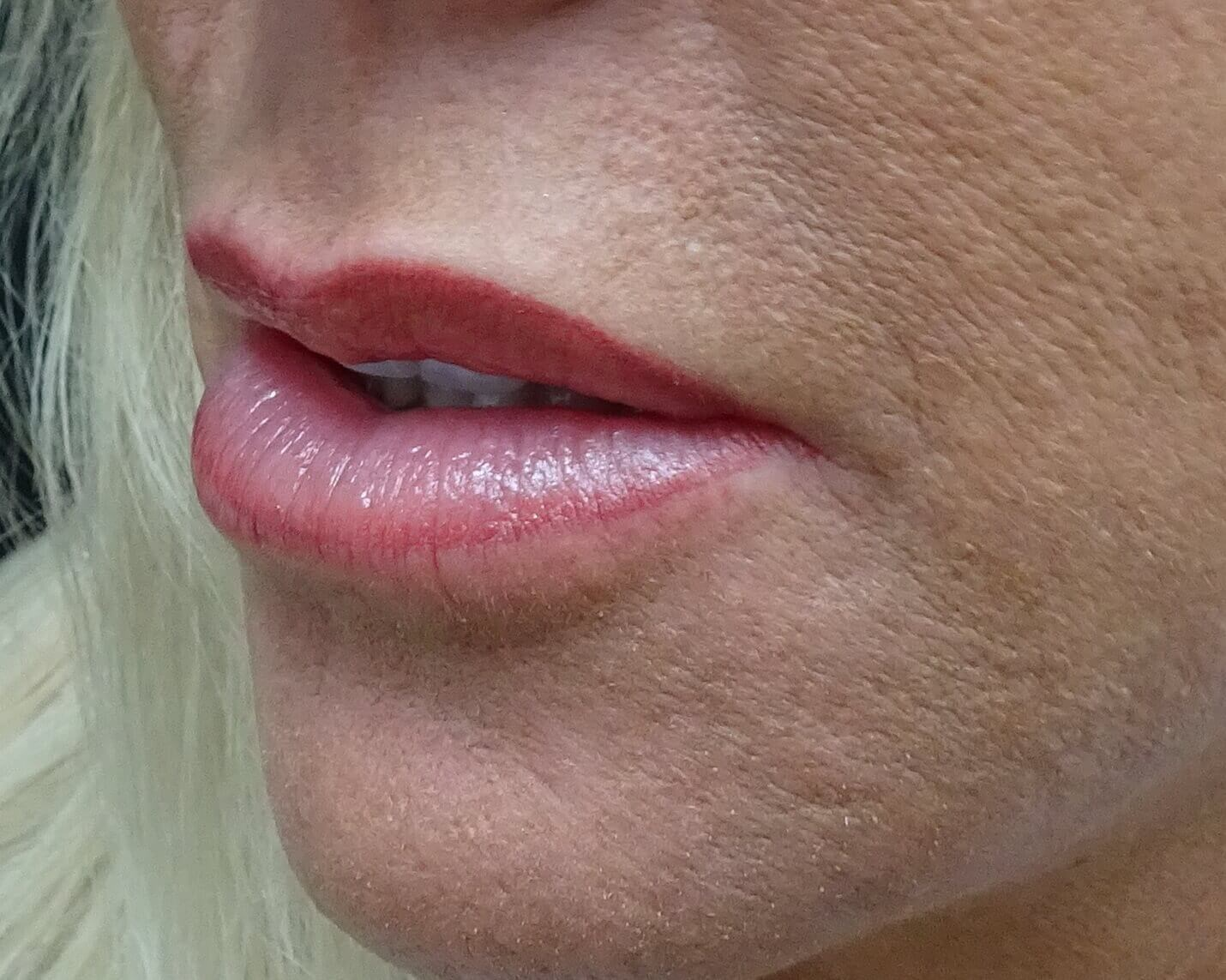 Side View Before & After After Juvederm & Dr. Lee