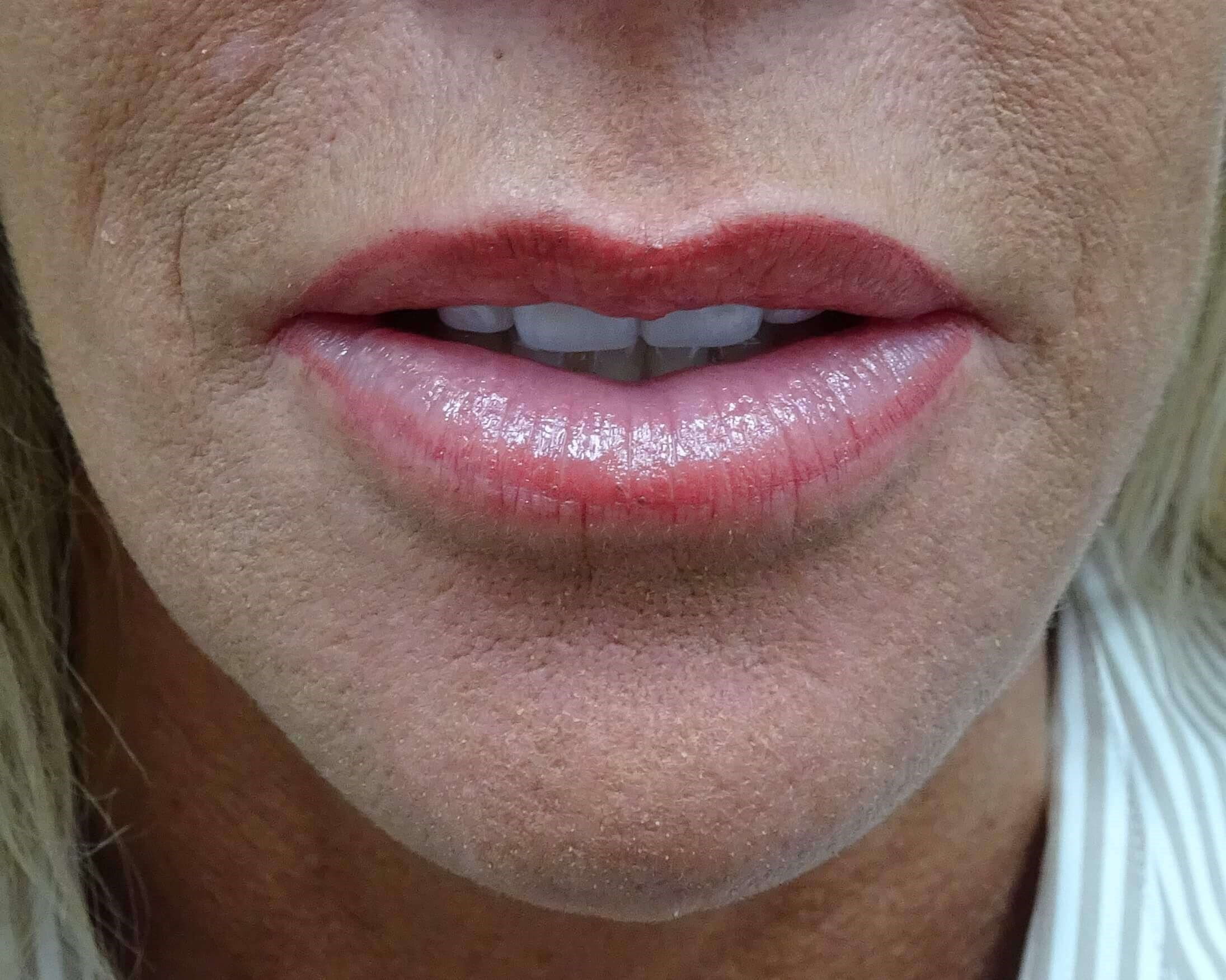 Juvederm enhances thin lips Lips Enhanced After Juvederm
