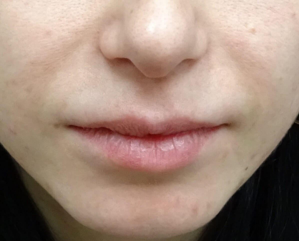 Juvederm in the Las Vegas area After Juvederm
