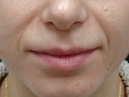 Juvederm in the Las Vegas area Facial Lines Before Juvederm
