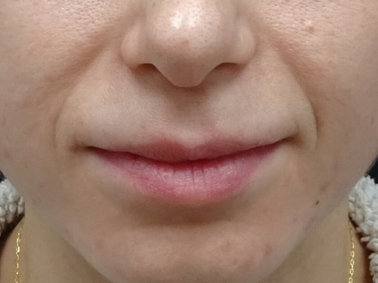 The results are obvious... Before Injection of Juvederm