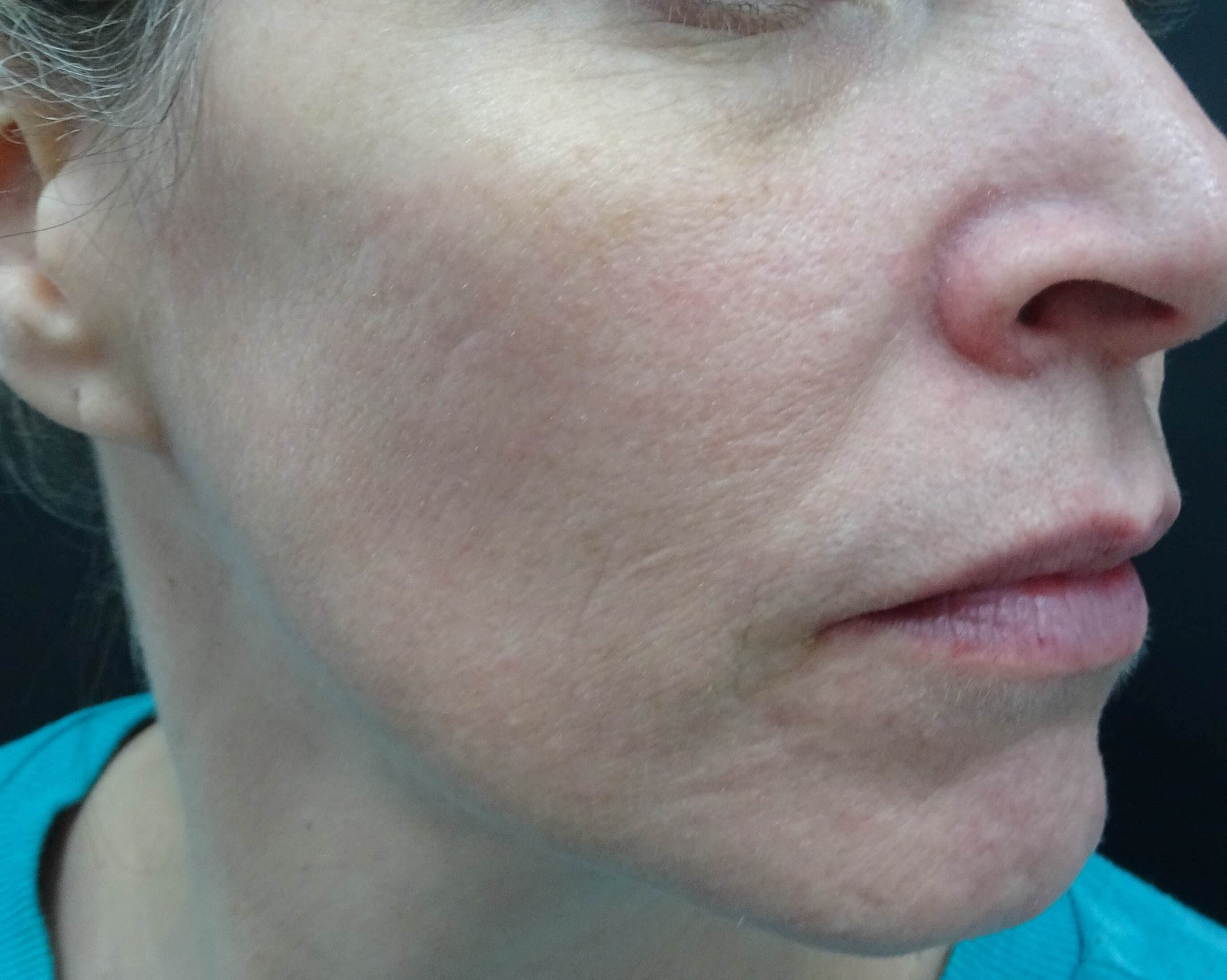 Right Side - Before & After After Sculptra
