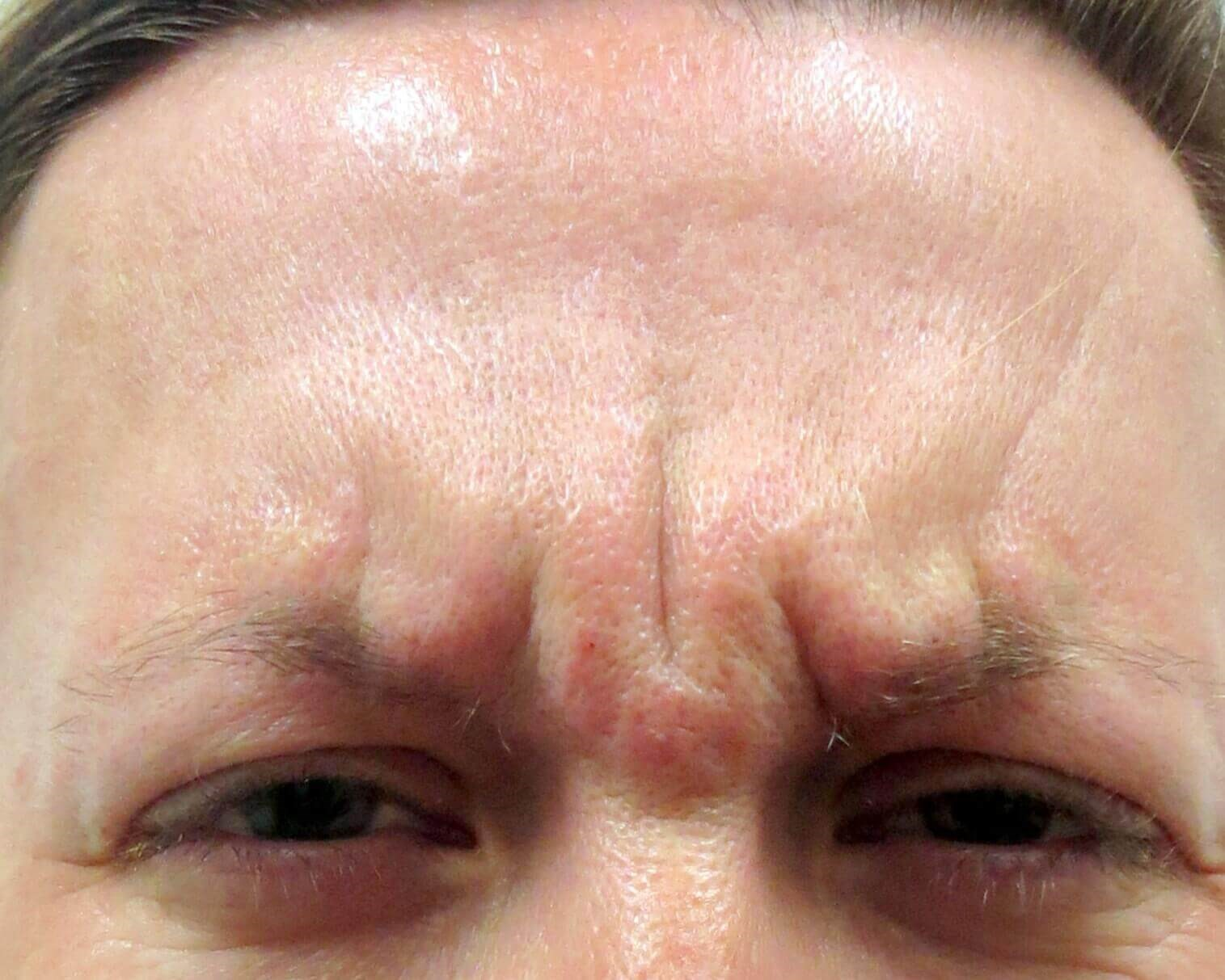 Botox in Henderson / Las Vegas Before Botox & Dr. Lee