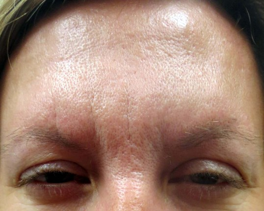 Botox in Henderson / Las Vegas After Botox & Dr. Lee