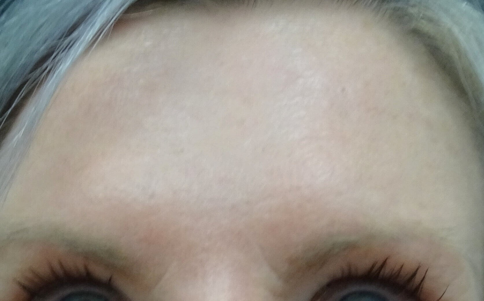 Botox for Forehead Wrinkles After Botox & Dr. Lee