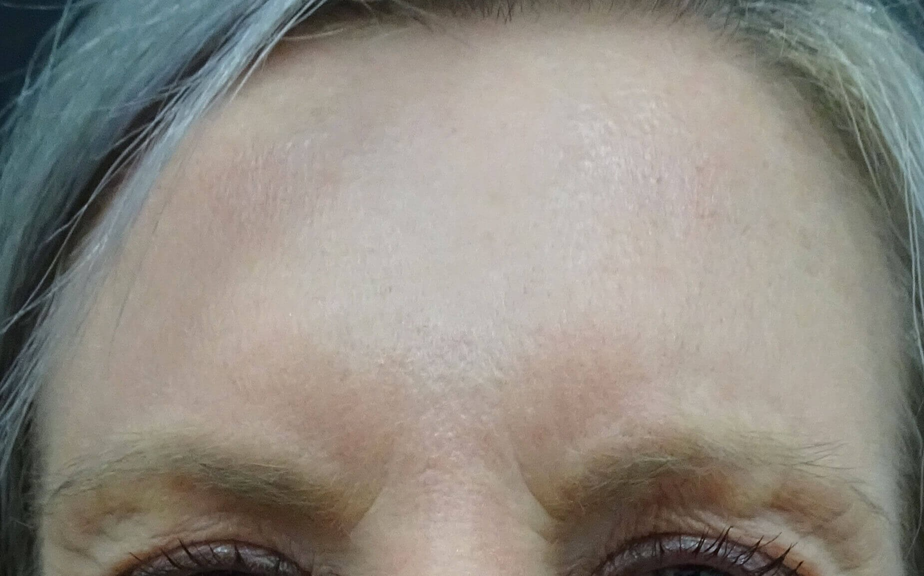 Botox las vegas and henderson After Botox & Dr. Lee