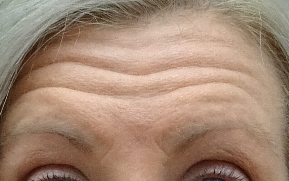 Botox for Forehead Wrinkles Before Botox & Dr. Lee
