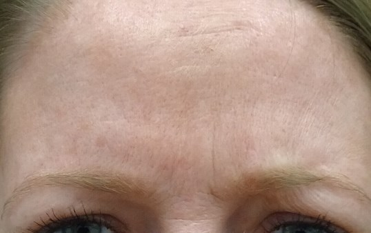 Botox for Frown Lines After Botox & Dr. Lee