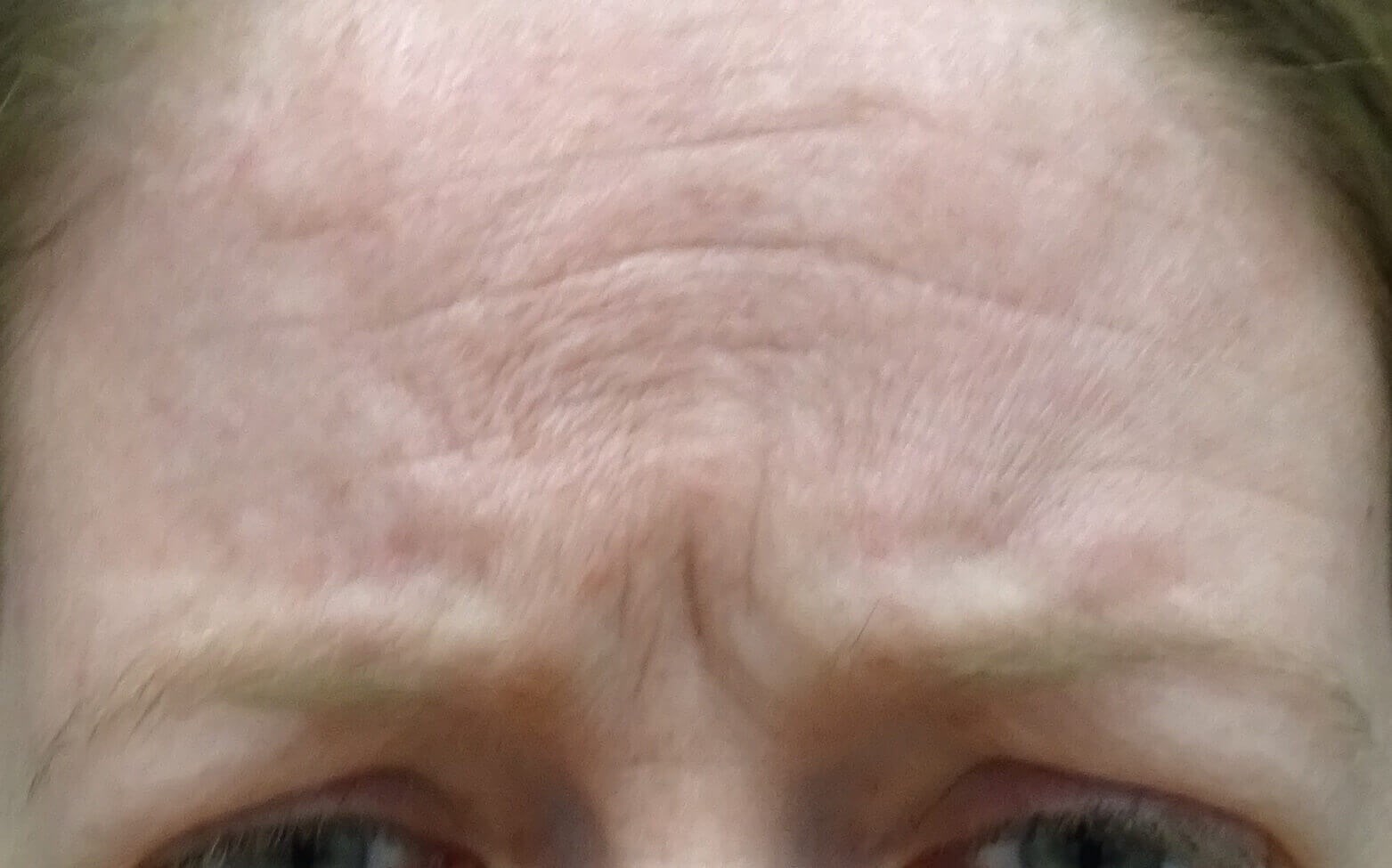 Botox for Frown Lines Before Botox & Dr. Lee
