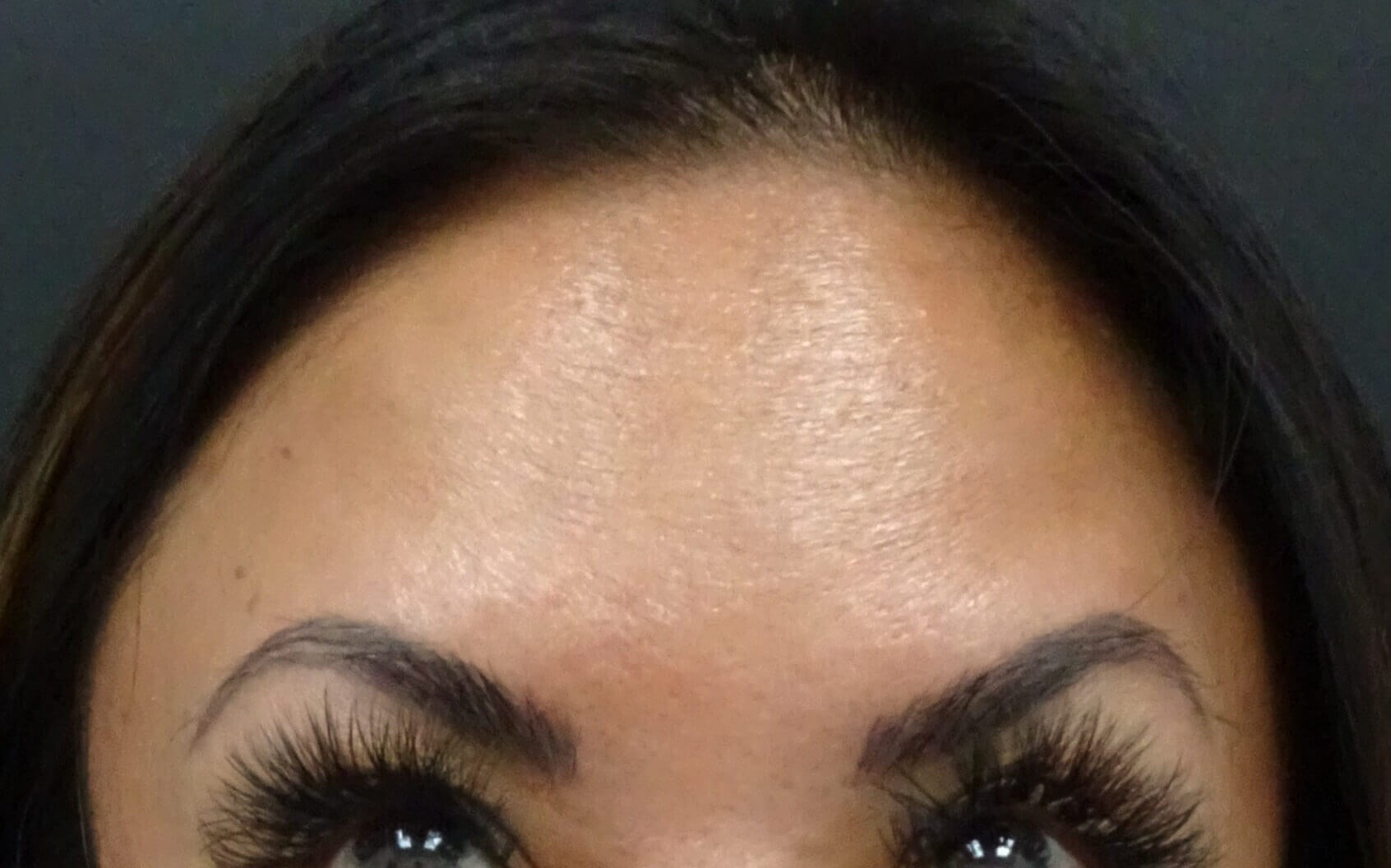 Las Vegas Botox for forehead After Botox & Dr. Lee